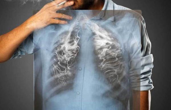 Asap Rokok Bisa Ubah Sel Paru-Paru